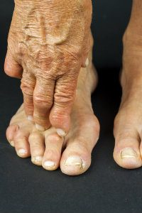 Foot With Hammertoes