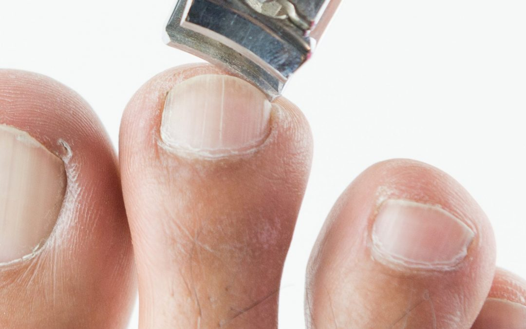 How to Fix Ingrown Toenails
