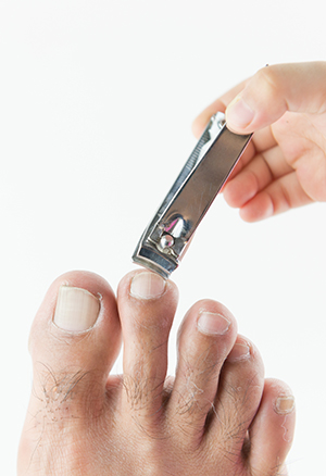 Ingrown Nails – Avoiding Trouble